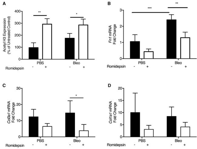 Romidepsin increased histone acetylation and suppressed pro-fibrotic gene expression in bleomycin treated mice: Bleomycin (2U/kg) was instilled