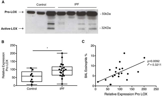 LOX was increased in IPF and correlated with increased eosinophils: BALF from IPF patients and control donors were analyzed by western blot for LOX expression.
