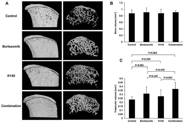 Dual bortezomib and K145 therapy has favourable effects on myeloma bone disease.