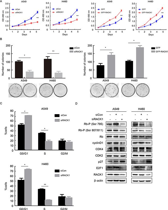 RACK1 promotes cellular proliferation by regulating G1/S progression in NSCLC cells.