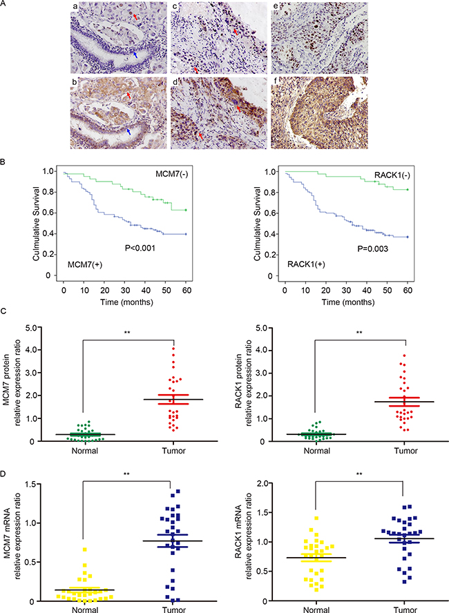RACK1 and MCM7 expression are elevated in clinical NSCLC samples.
