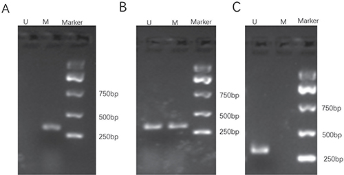 Representative gel electrophoresis of PCR products for methylation assay of the WWOX gene promoter CpG islands in osteosarcoma of patients.