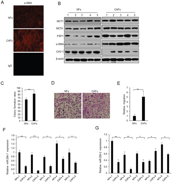 Lack of miR-29b expression in CAFs.