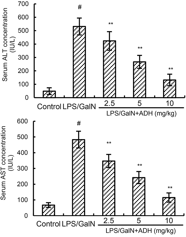 Effects of ADH on serum ALT and AST levels.