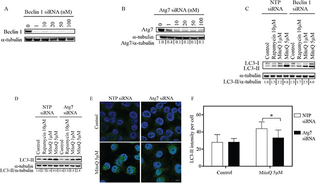 Knockdown of Atg7 inhibits MitoQ-induced autophagy in breast cancer cells.