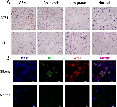 Expression of HCMV IE and ATF5 in normal brain tissue and human glioma samples.