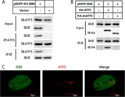 IE86 interacts with endogenous ATF5 but not with dnATF5.