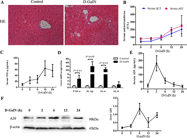 Liver injury and A20 expression are induced by D-GalN in mice.
