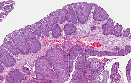 IP characterized by an inverted pattern of growth with cords and nests of epithelium endophytically projecting into the underlying stroma (H&E; 100×).