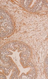 A case of primitive IP with a low positivity for estrogen receptor (immunoperoxidase; 150×).