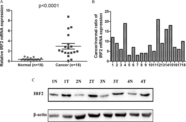 IRF-2 was up-regulated in colorectal cancer.