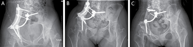 A 16-year-old female (case 4) with diagnosis of pelvis osteosarcoma affecting zone I + IV.