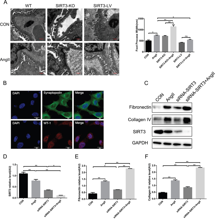 SIRT3 decreases the expression of fibrosis factors in podocytes.