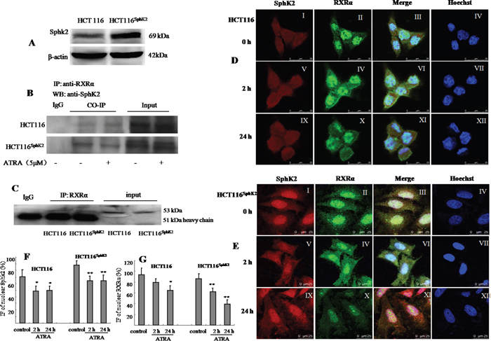 Sphk2 and RXRα are expressed in overlapping subcellular compartments in HCT-116 and HCT-116Sphk2 cells.