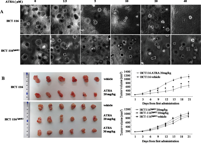 Overexpression of Sphk2 contributes to cancer cell resistance to ATRA therapy.