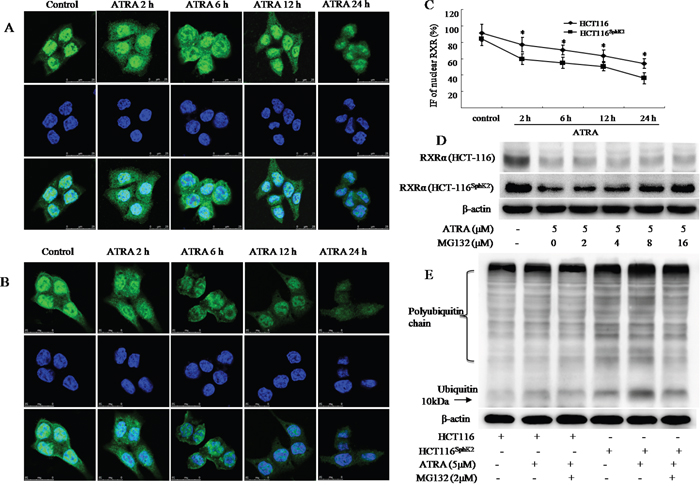 SphK2 enhances the rapid degradation of RXRα in the cytoplasm through the ubiquitination pathway.