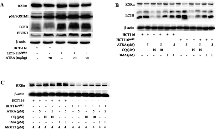 SphK2 enhances the K63-linked ubiquitin-dependent autophagic degradation of cytoplasmic RXRα.