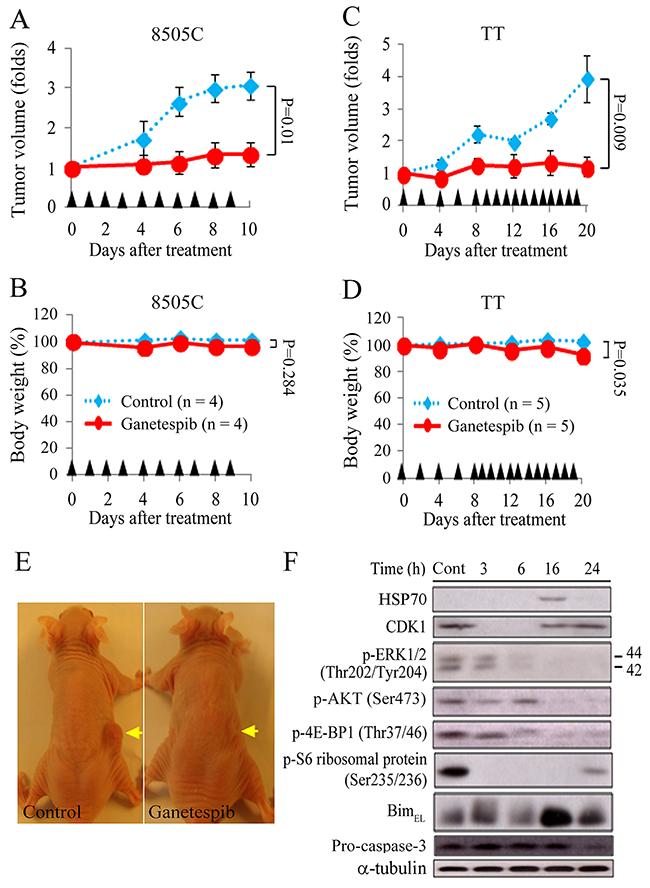 Ganetespib retards the growth of ATC and MTC flank xenograft tumors in nude mice.