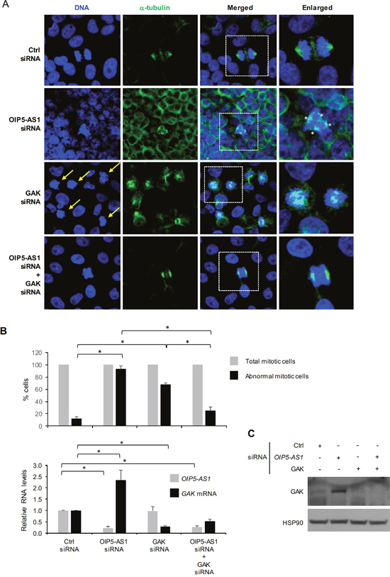 Impact of silencing GAK on abnormal mitoses in OIP5-AS1 silenced cells.