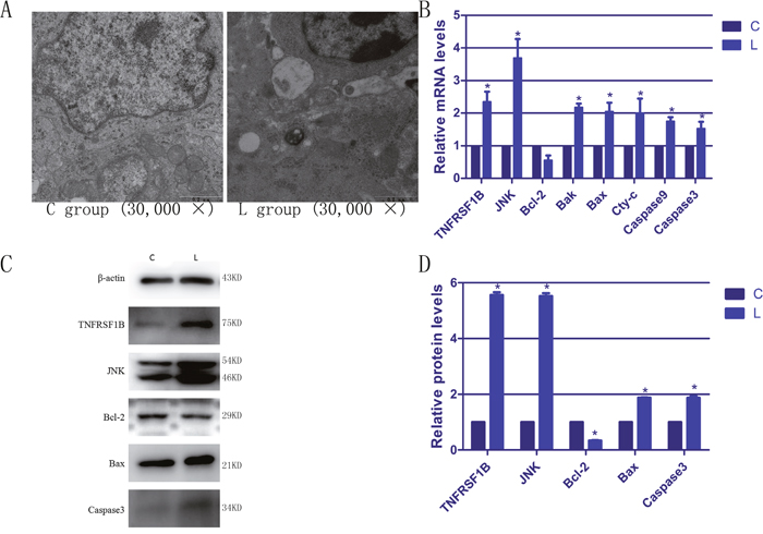 The ultrastructural changes and the expressions of apoptotic genes in spleen of selenium deficiency broiler.