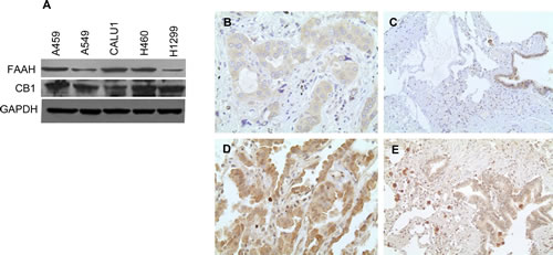 NSCLC cell lines and primary lung cancer tissues express CB1 and FAAH.