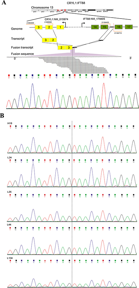 Detection and Sanger sequencing validation of a recurrent fusion transcript CRYL1-IFT88.
