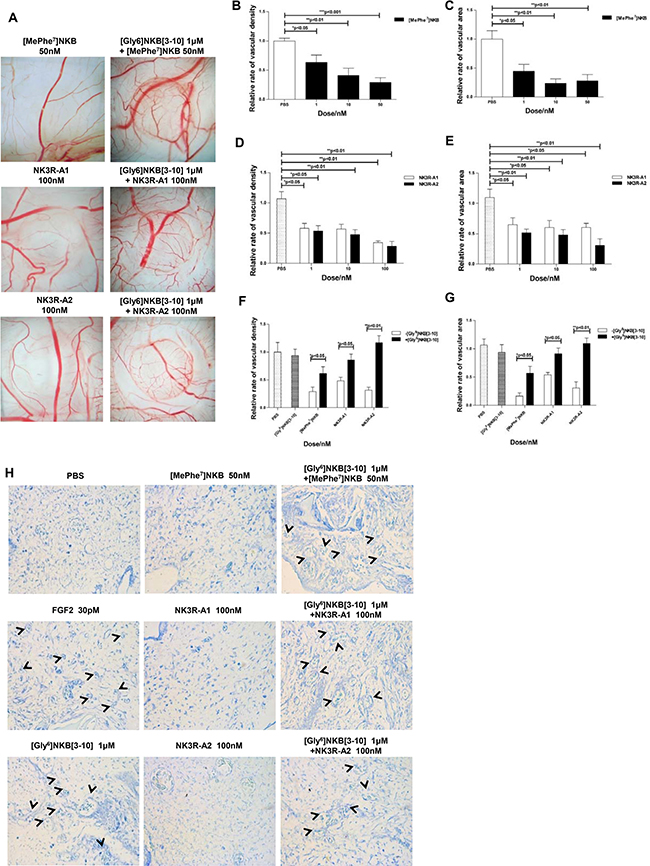 NK3R selective agonist analogues exert anti-angiogenic property on CAM through NK3R.