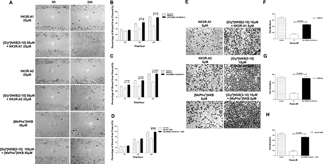 NK3R antagonist [Gly6]NKB[3-10] could antagonize the anti-angiogenic effect induced by NK3R-A1, NK3R-A2 and [MePhe7]NKB in vitro.