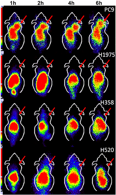 SPECT imaging of 99mTc-HYNIC-MPG in PC9, H1975, H358 and H520 xenografts at 1 h, 2 h, 4 h, and 6 h time points.