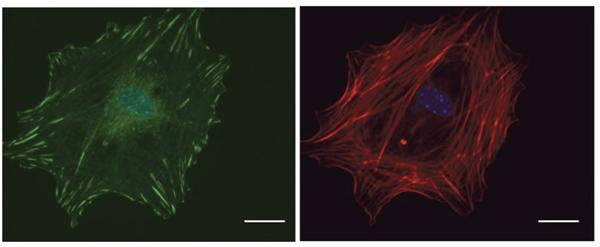 Microscopic visualization of FAs.