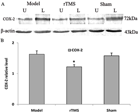 Effects of repetitive transcranial magnetic stimulation (rTMS) treatment on the expression of COX-2 in the substantia nigra of the rats induced by lactacystin.