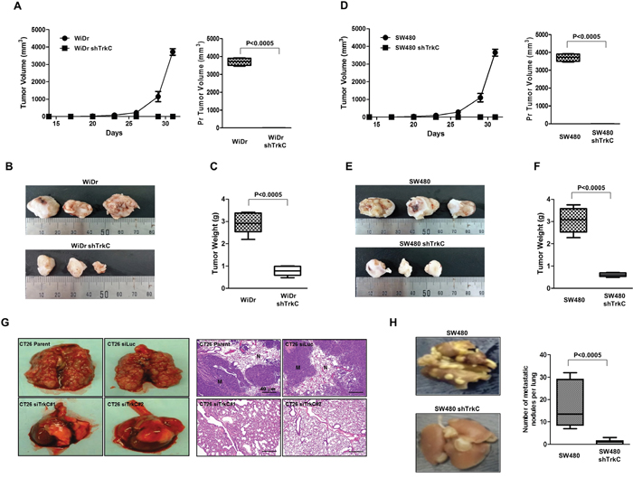 Suppression of TrkC expression inhibits tumorigenicity and metastasis of CRCs.