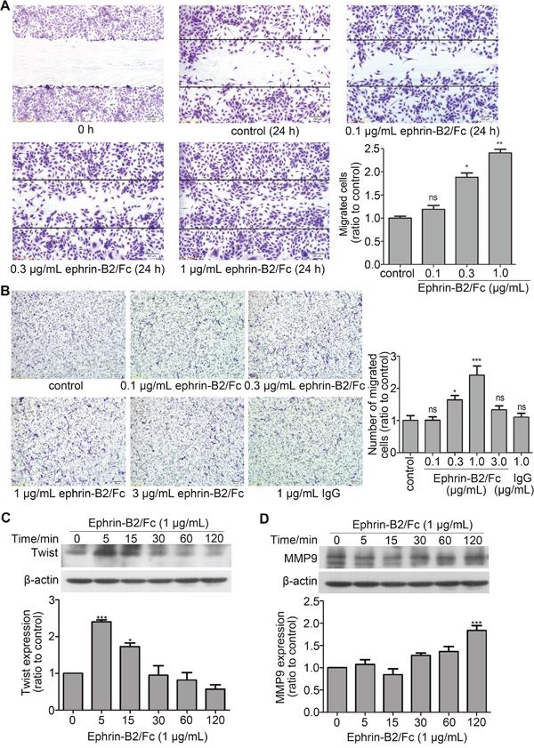 Ephrin-B2 promotes HUVEC migration.