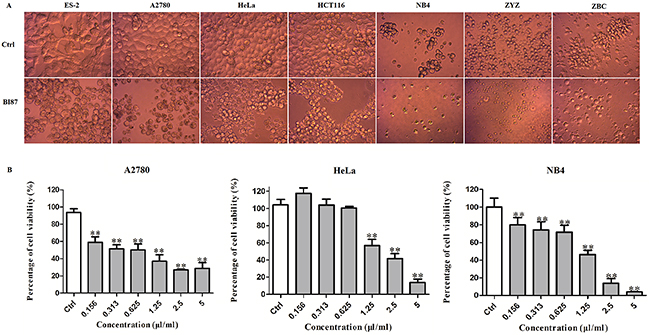 Anticancer activities of BI87 culture against human cancer cell lines.