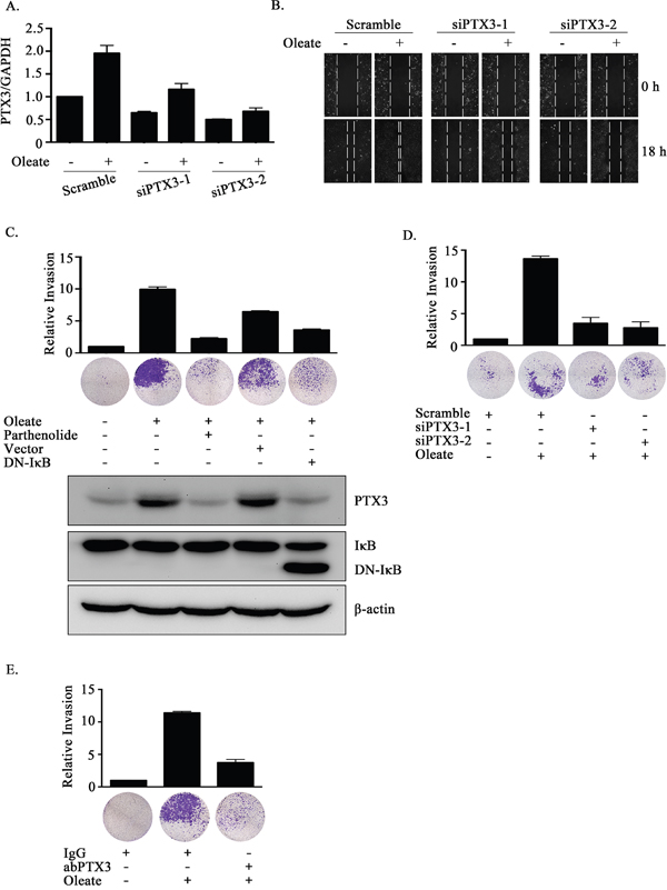 The depletion of PTX3 inhibits oleate-induced HNSCC migration and invasion.