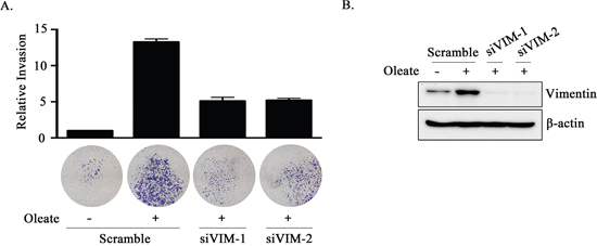 The knockdown of vimentin inhibits oleate-induced tumor cell invasion.