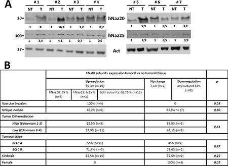 hNatB protein expression in human hepatocellular carcinoma (HCC) and non-tumor liver tissue.