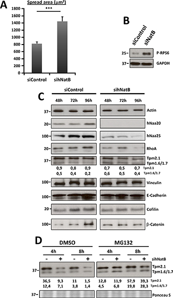 Effects of hNatB downregulation on cell size and actin cytoskeleton protein expression on PLC/PRF/5 cells.