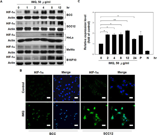 IMQ induced HIF-1α expression and activation in tumor cells.