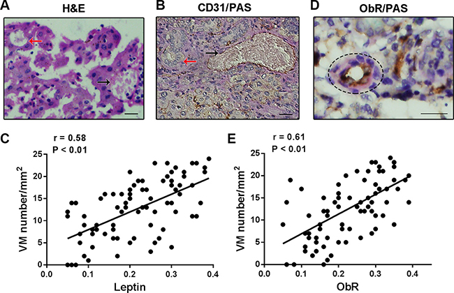 The correlation of ObR expression and VM formation in human glioblastoma specimens.