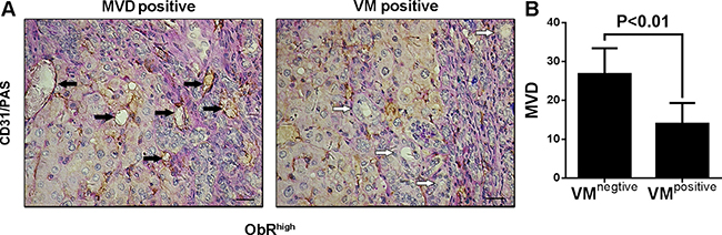 ObR+ glioblastoma cells with GSC characteristic were mostly involved in VM formation, whereas a little part of cells were also related to MVD.