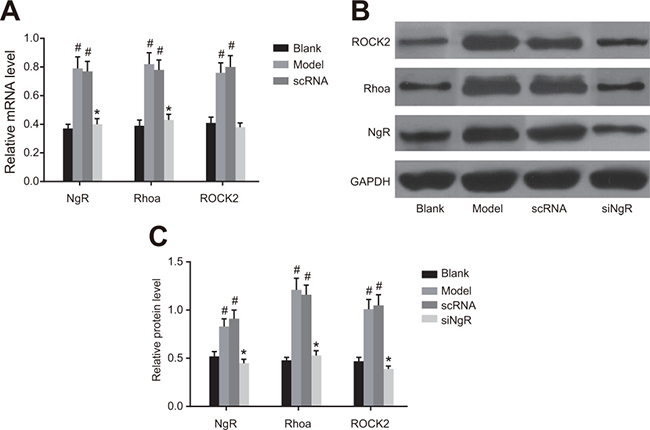 The effect of NgR silencing on RhoA signaling pathway in NMDA-treated murine retinal tissues.
