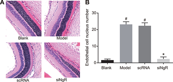 The effects of NgR gene silencing on angiogenesis in NMDA-treated murine retinal tissues.