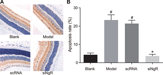 Effects of NgR silencing on mRGC apoptosis in NMDA-treated murine retinal tissues.