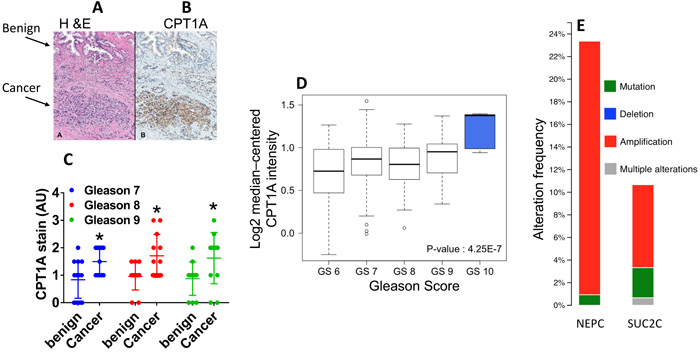 CPT1A expression is increased in advanced prostate cancer.