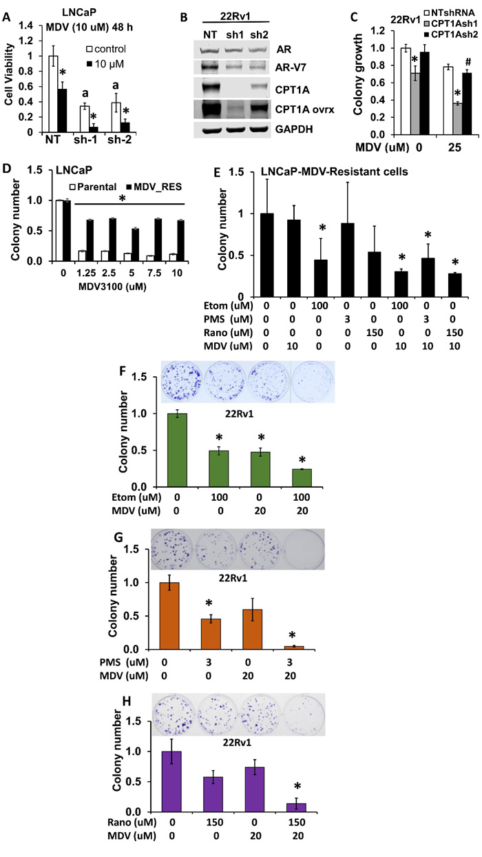 Combinatorial effects of CPT1A inhibition and anti-androgen therapy in human PCa cells.