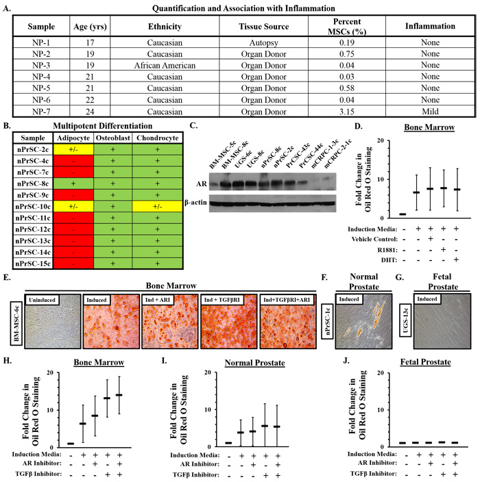 Characterization of mesenchymal stem and progenitor cells (MSCs/MPCs) in normal prostate tissue.