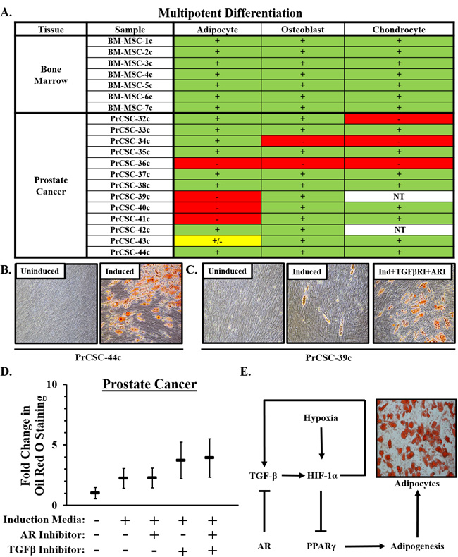 Multipotent differentiation of MSCs in prostate cancer.