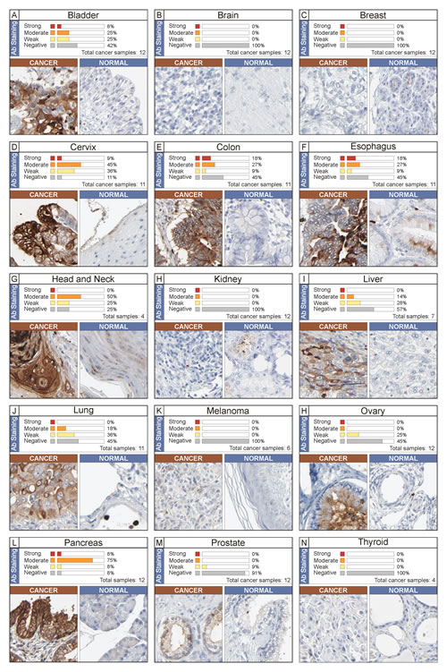Immunohistochemistry analysis of NGAL expression in human cancer.