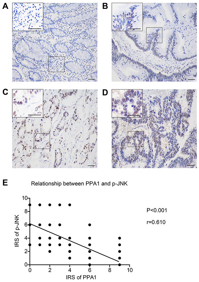 Phosphor-JNK level is negatively correlated with PPA1 expression in colon adenocarcinoma tissues.